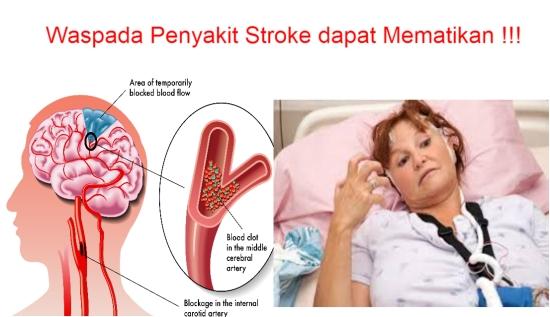 Pengobatan Penyakit Stroke